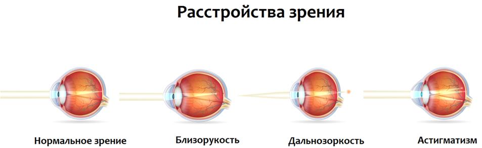 Что делать при снижении зрения 2.png